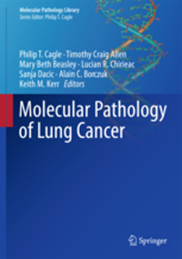 Molecular Pathology of Lung Cancer(Molecular Pathology Library Vol.6)