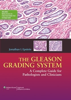 Gleason Grading System- A Complete Guide for Pathologist and Clinicians(Vital Source E-Book)