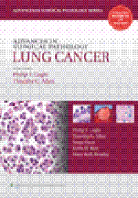 Advances in Surgical Pathology: Lung Cancer(Vital Source E-Book)