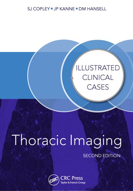 Thoracic Imaging, 2nd ed.- Illustrated Clinical Cases