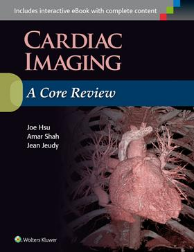 Cardiac Imaging- A Core Review
