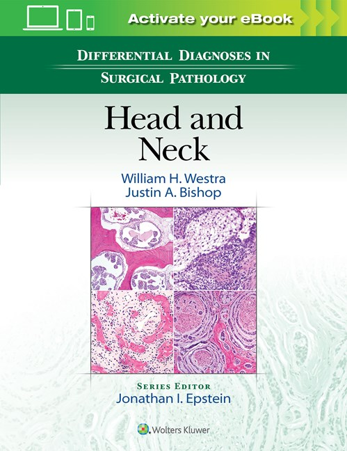 Differential Diagnosis in Surgical Pathology: Head & Neck