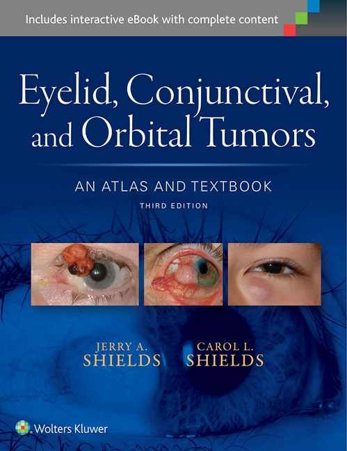 Eyelid, Conjunctival & Orbital Tumors, 3rd ed.- An Atlas & Textbook