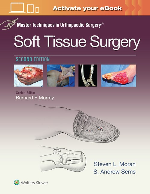 Soft Tissue Surgery, 2nd ed.(Master Techniques inOrthopaedic Surgery)