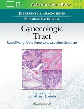 Differential Diagnosis in Surgical Pathology: Gynecologic Tract(Vital Source E-Book)