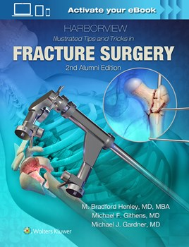 Harborview Illustrated Tips & Tricks in FractureSurgery, 2nd ed.