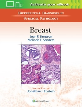 Differential Diagnosis in Surgical Pathology: Breast(Vital Source E-Book)