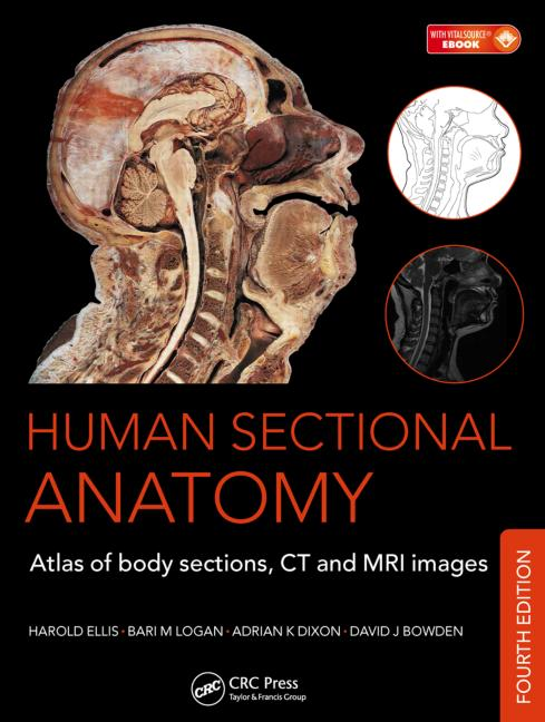 Human Sectional Anatomy, 4th ed.- Atlas of Body Sections, CT & MRI Images