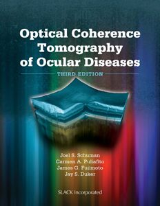 Optical Coherence Tomography of Ocular Diseases, 3rdEd.