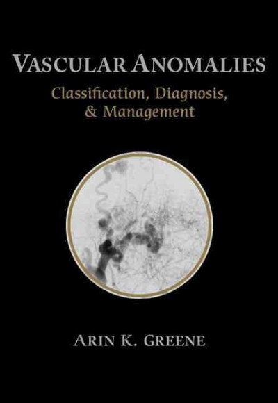 Vascular Anomalies-Classification, Diagnosis & Management
