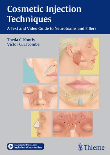 Cosmetic Injection Techniques- A Text & Video Guide to Neurotoxins & Fillers(Plus E-Content Online)