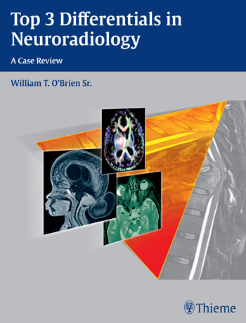 Top 3 Differentials in Neuroradiology- A Case Review