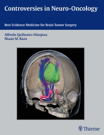 Controversies in Neuro-Oncology- Best Evidence Medicine for Brain Tumor Surgery