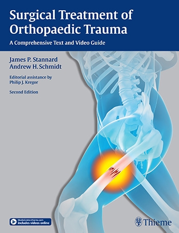 Surgical Treatment of Orthopaedic Trauma, 2nd ed.- A Comprehensive Text & Video Guide