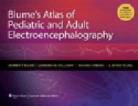 Blume's Atlas of Pediatric & AdultElectroencephalography