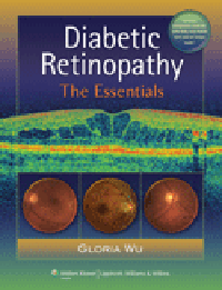 Diabetic Retinopathy- Essentials