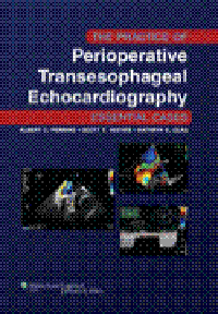 Practice of Perioperative TransesophagealEchocardiography- Essential Cases