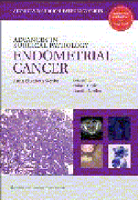 Advances in Surgical Pathology: Endometrial Cancer