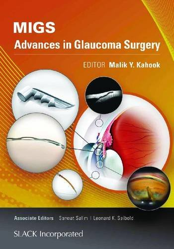 MIGS- Advances in Glaucoma Surgery