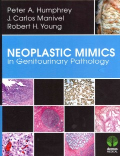 Neoplastic Mimics in Genitourinary Pathology(Pathology of Neoplastic Mimics Series)