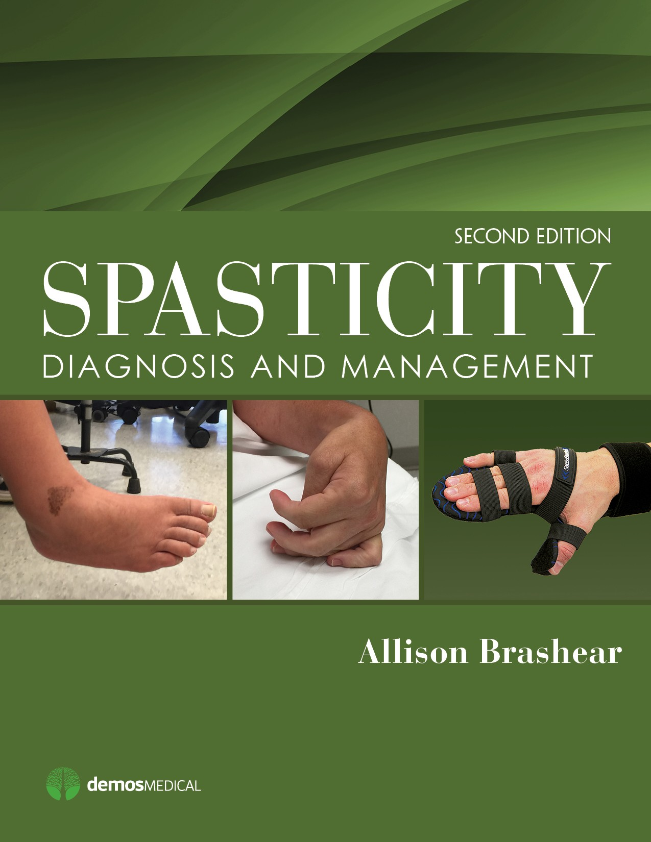 Spasticity, 2nd ed.- Diagnosis & Management