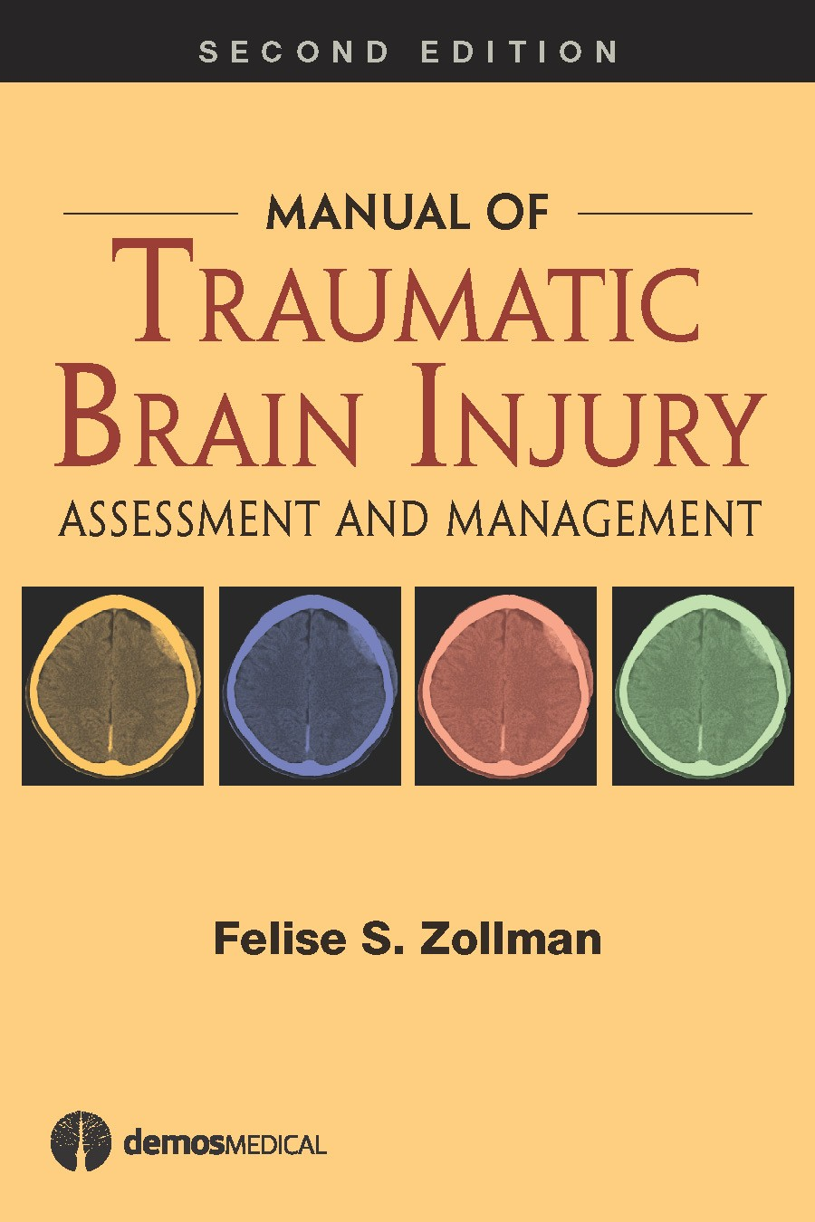 Manual of Traumatic Brain Injury, 2nd ed.- Assessment & Management