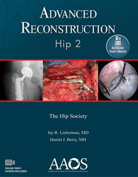 Advanced Reconstruction: Hip, 2nd ed.