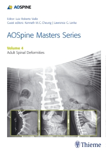 AO Spine Masters SeriesVol.4: Adult Spinal Deformities