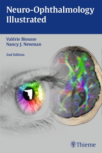 Neuro-Ophthalmology Illustrated, 2nd ed.