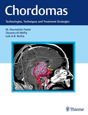 Chordomas-Technologies, Techniques, & Treatment Strategies