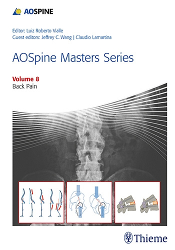 AO Spine Masters SeriesVol.8: Back Pain