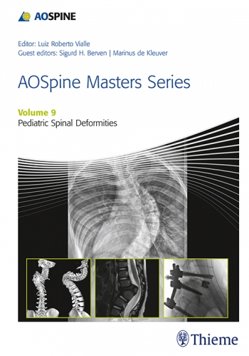 AO Spine Masters SeriesVol.9: Pediatric Spinal Deformities