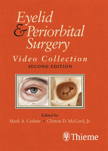Eyelid & Periorbital Surgery, 2nd ed.- Video Collection