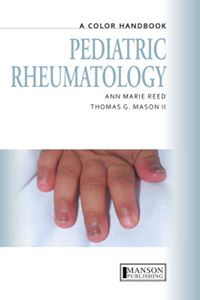 Color Handbook: Pediatric Rheumatology