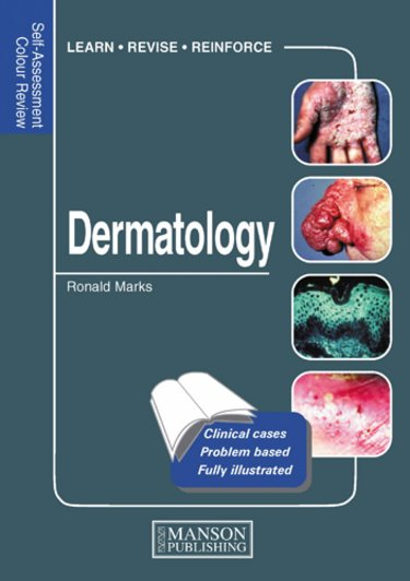 Self-Assessment Colour Review: Dermatology