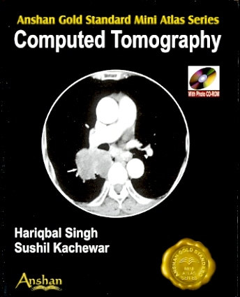 Mini Atlas of Computed Tomography with CD-ROM