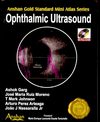 Mini Atlas of Ophthalmic Ultrasound (With CD-ROM)