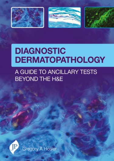 Diagnostic Dermatopathology- A Guide to Ancillary Tests Beyond the H&E