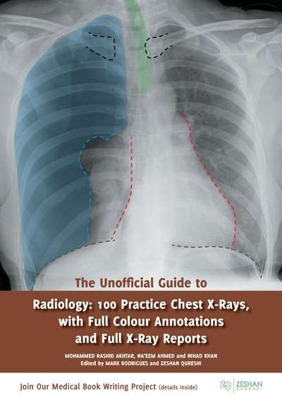 Unofficial Guide to Radiology- 100 Practice Chest X-Rays, with Full ColourAnnotations and Full X-Ray Reports