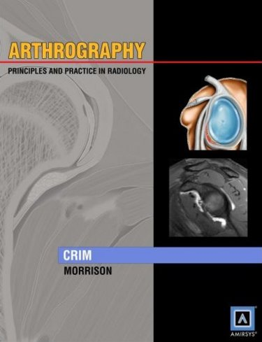 Arthrography- Principles & Practice in Radiology(Specialty Imaging Series)