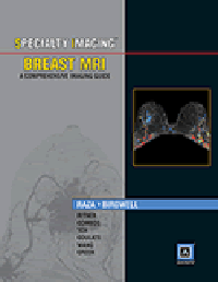 Breast MRI- A Comprehensive Imaging Guide(Specialty Imaging Series)