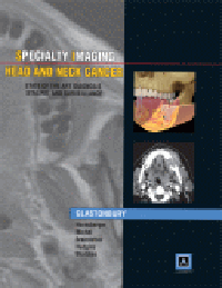Head & Neck Cancer (Specialty Imaging Series)