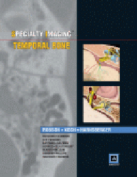 Temporal Bone(Specialty Imaging Series)(With Amirsys Ebook Advantage an Online)