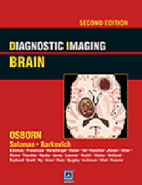 Diagnostic Imaging: Brain, 2nd ed.