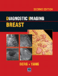 Diagnostic Imaging: Breast, 2nd ed.