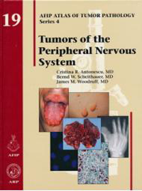 Atlas of Tumor Pathology, 4th Series, Fascicle 19- Tumors of the Peripheral Nervous System