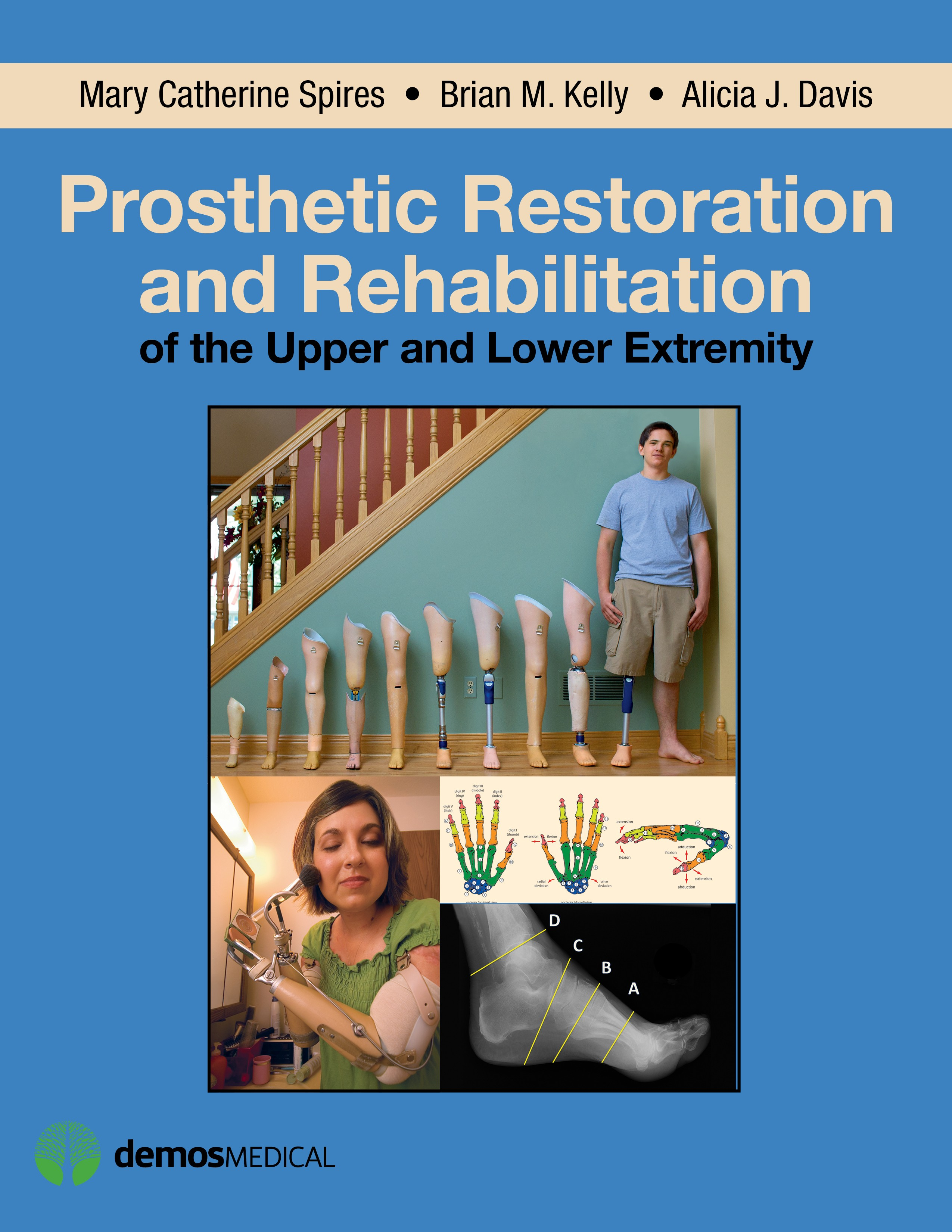 Prosthetic Restoration & Rehabilitation of the Upper &Lower Extremity