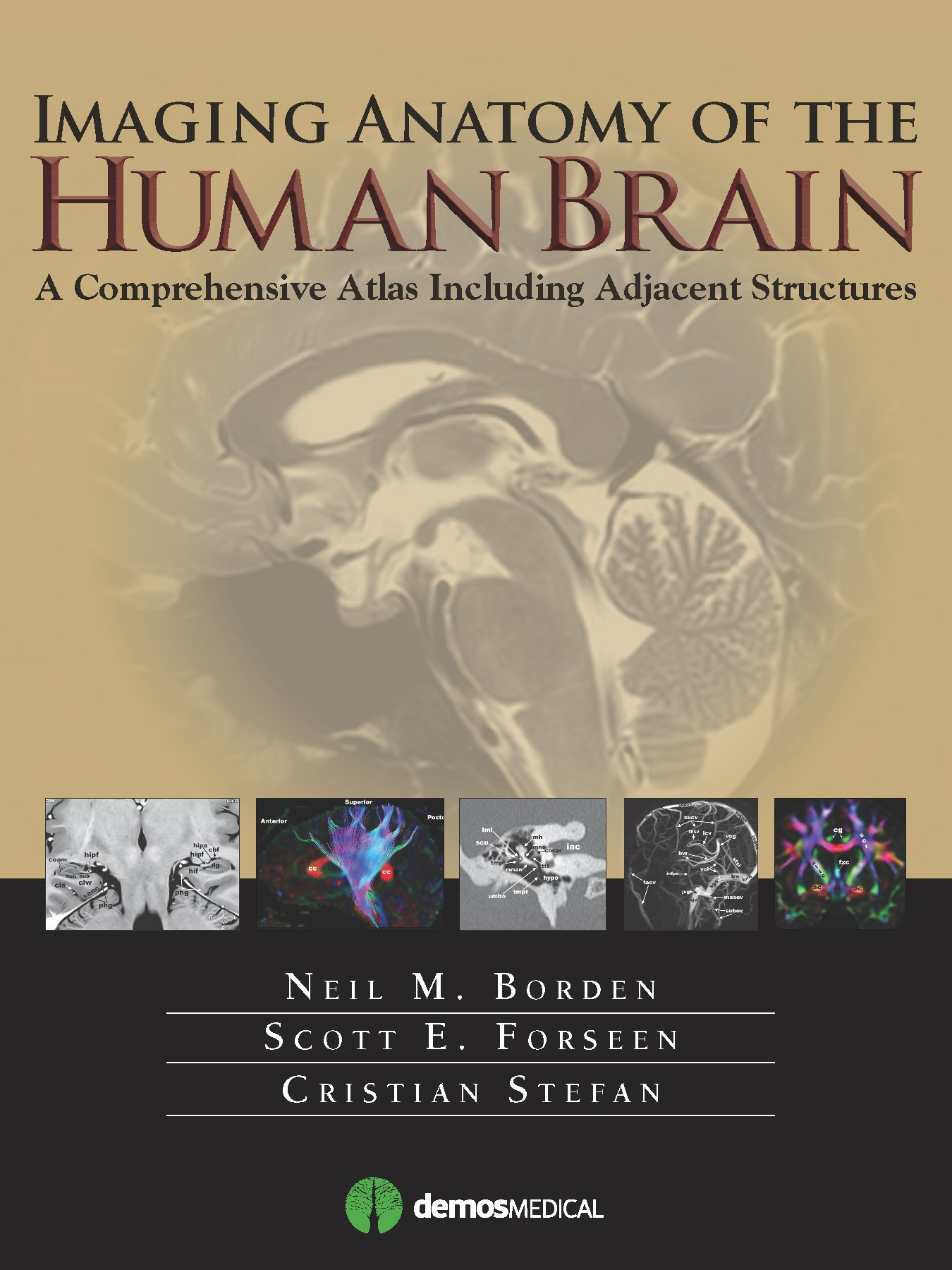 Imaging Anatomy of the Human Brain- A Comprehensive Atlas Including Adjacent Structures
