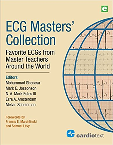 ECG Master's Collection- Favorite ECGs from Master Teachers Around the World