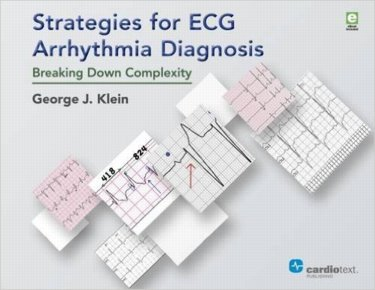 Strategies for ECG Arrhythmia Diagnosis, Hardcover- Breaking Down Complexity